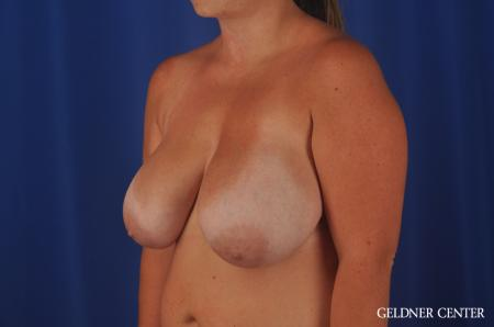 Chicago Breast Reduction 11855 - Before and After Image 4