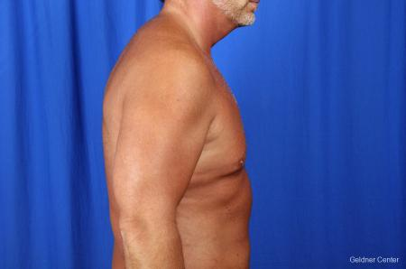 Gynecomastia: Patient 7 - Before Image 2