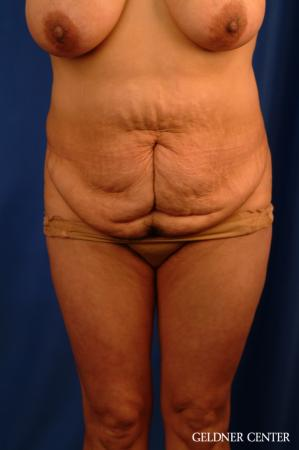 Vaser lipo patient 2629 before and after photos - Before Image