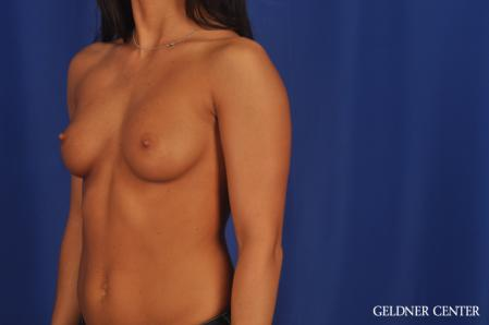 Breast Augmentation: Patient 175 - Before and After 4
