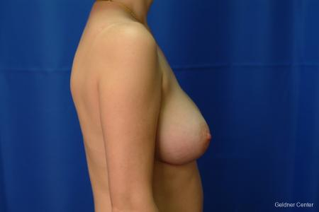 Chicago Breast Augmentation 2413 -  After Image 2
