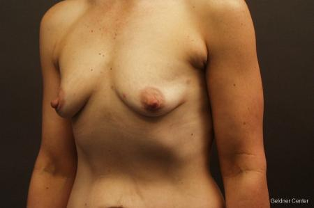 Breast Augmentation Hinsdale, Chicago 2632 - Before and After 4