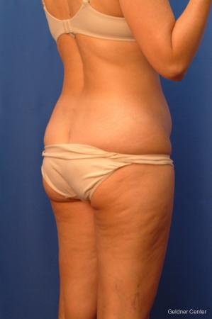 Vaser lipo patient 2520 before and after photos - Before Image 3