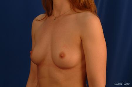 Chicago Breast Augmentation 2634 - Before Image 4