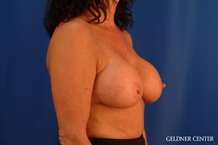 Chicago Breast Lift 2617 - Before Image 3