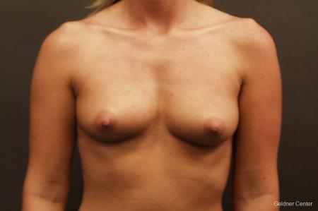 Breast Augmentation Streeterville, Chicago 2425 - Before Image 1