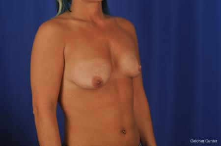 Chicago Complex Breast Augmentation 2336 - Before Image 3
