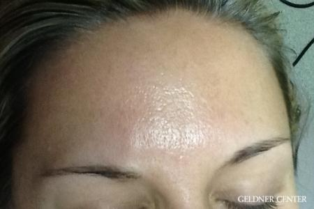 Dermapen patient 1832 before and after gallery photos - Before Image
