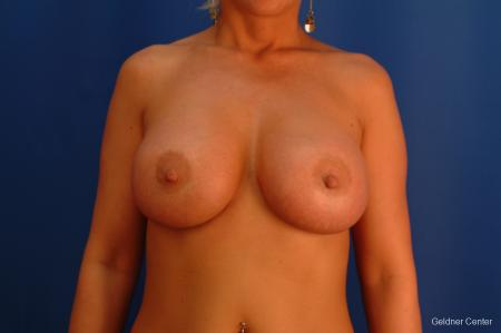 Complex Breast Augmentation Streeterville, Chicago 2428 -  After Image 1