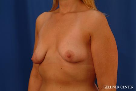 Breast Augmentation: Patient 164 - Before and After Image 4