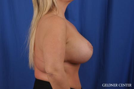 Breast Lift: Patient 41 - After Image 2