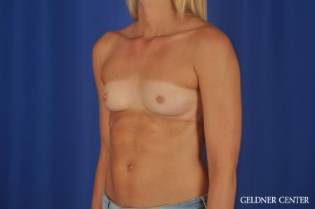 Breast Augmentation: Patient 168 - Before Image 4
