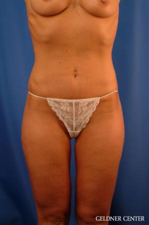 Vaser lipo patient 2624 before and after photos - After Image