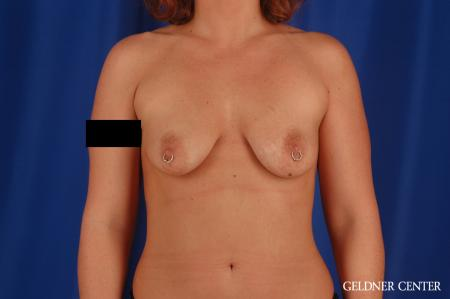 Breast Augmentation: Patient 171 - Before Image 1