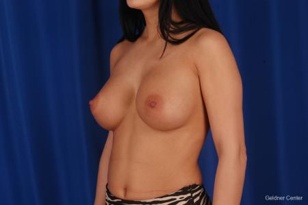 Breast Augmentation Lake Shore Dr, Chicago 2402 -  After Image 4
