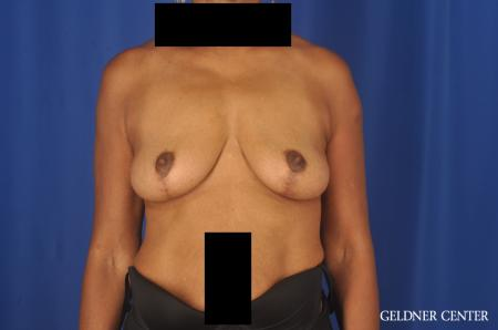 Breast Lift: Patient 22 - After Image 1