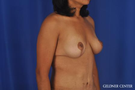 Breast Lift: Patient 49 - After Image 2