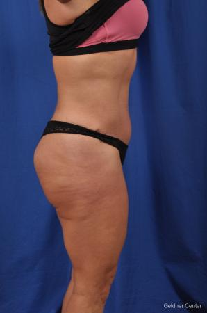 Abdominoplasty: Patient 7 - After Image 3