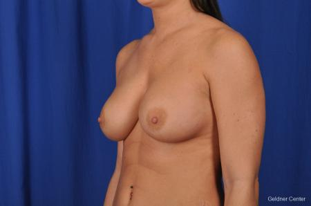 Breast Augmentation Streeterville, Chicago 2071 -  After Image 4