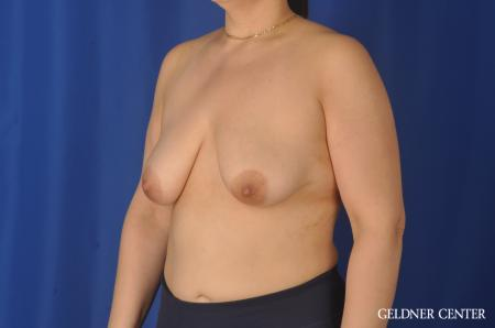 Breast Augmentation: Patient 140 - Before and After Image 4