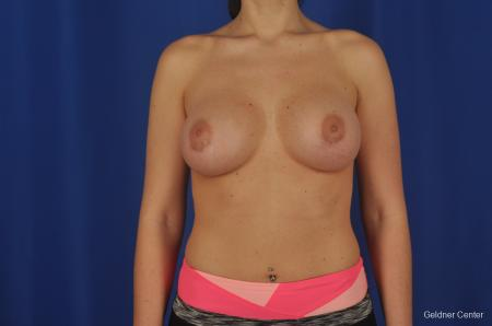 Breast Augmentation Lake Shore Dr, Chicago 2380 -  After Image 1