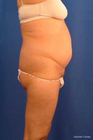 Liposuction: Patient 18 - Before 2