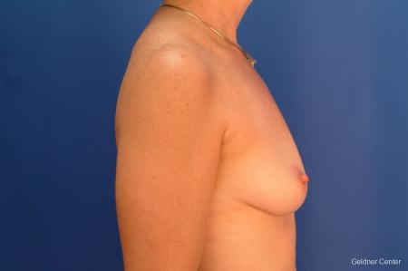 Breast Augmentation Hinsdale, Chicago 2541 - Before Image 2