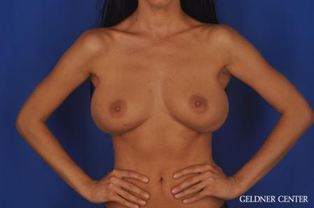 Complex Breast Augmentation: Patient 38 - Before and After Image 5