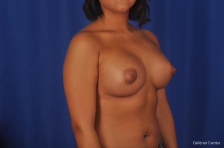 Breast Augmentation: Patient 156 - After Image 2
