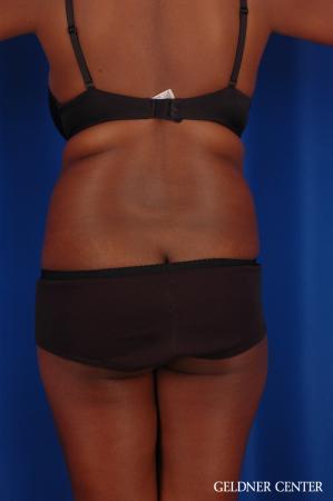 Liposuction: Patient 42 - Before Image 4