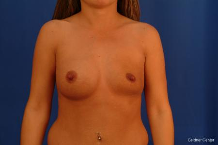 Chicago Breast Augmentation 2526 - Before Image 1