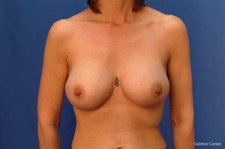Chicago Complex Breast Augmentation 2415 -  After Image 1