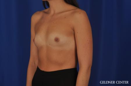 Breast Augmentation Hinsdale, 4290 - Before Image 4