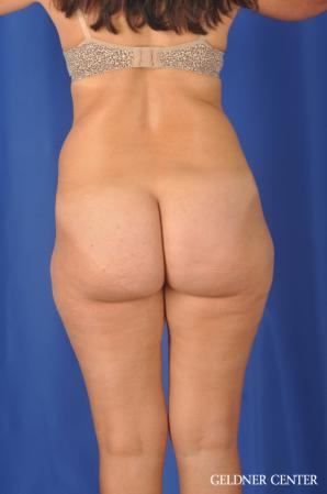 Liposuction: Patient 47 - Before Image 4