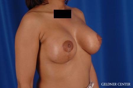 Breast Augmentation: Patient 183 - After Image 2