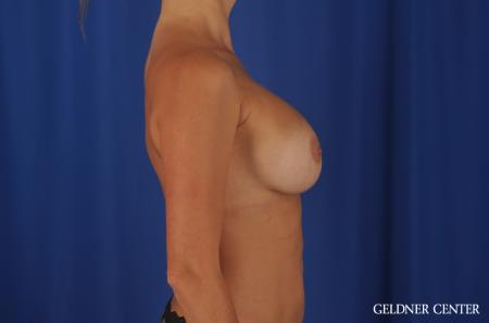 Chicago Breast Augmentation 8746 -  After Image 2