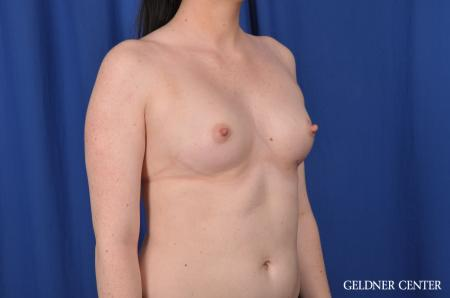 Breast Augmentation: Patient 135 - Before Image 3
