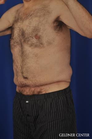 Liposuction For Men: Patient 11 - Before and After Image 5
