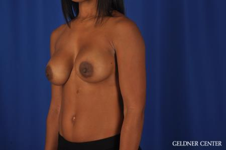 Chicago Breast Augmentation 4291 -  After Image 4