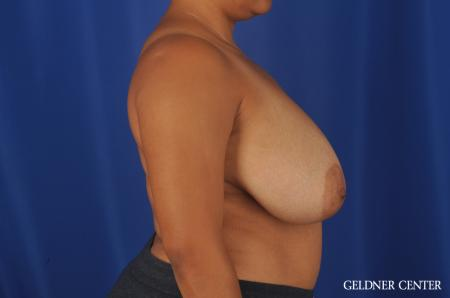 Breast Reduction Lake Shore Dr, Chicago 9099 - Before 3
