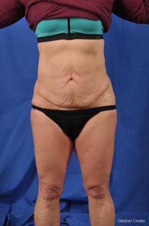 Abdominoplasty: Patient 7 - Before Image 1