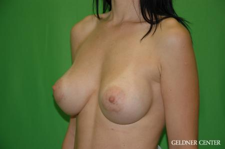 Breast Augmentation: Patient 166 - After Image 4