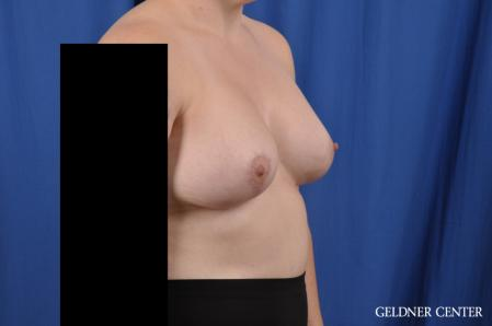 Breast Augmentation: Patient 178 - After Image 2