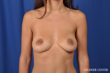 Breast Augmentation: Patient 134 - Before 1