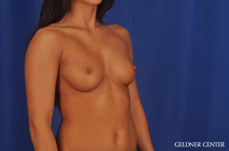 Breast Augmentation: Patient 175 - Before Image 2