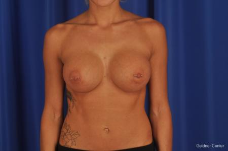 Chicago Breast Augmentation 2328 -  After Image 1