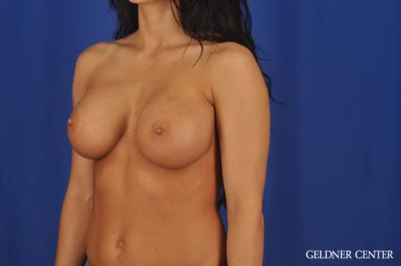 Breast Augmentation: Patient 175 - After Image 4