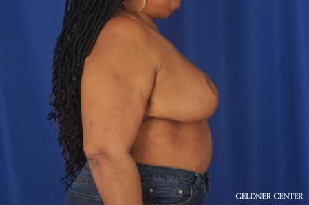 Breast Reduction: Patient 22 - After Image 2