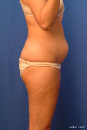 Vaser lipo patient 2520 before and after photos - Before Image 2