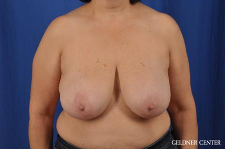 Breast Reduction: Patient 31 - Before Image 1
